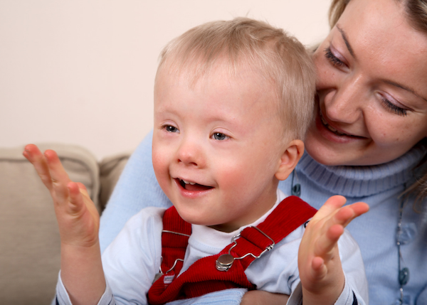 Speech and language development Down syndrome